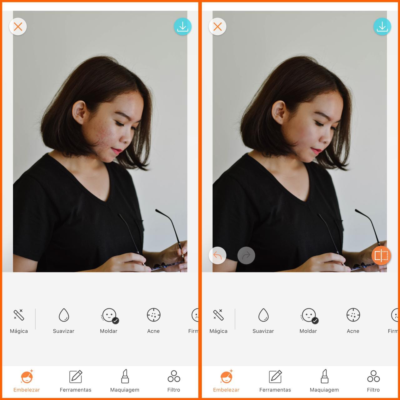 skin care digital antes e depois