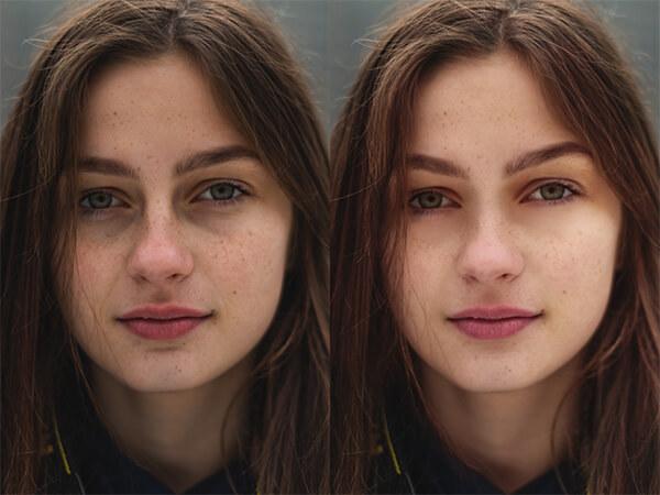 Montagem com 2 fotos de uma mulher com sardas mostrando o antes e depois.