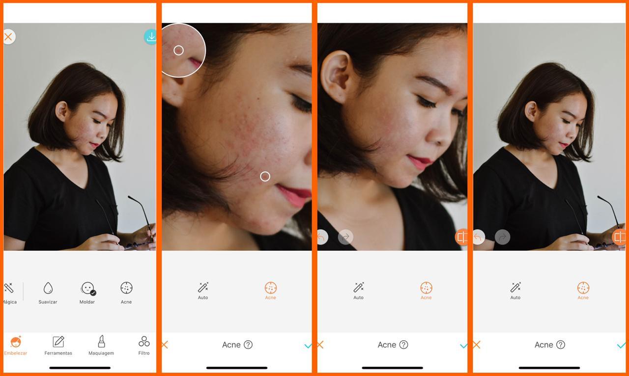 skin care digital ferramenta acne