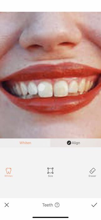 New Teeth Who Dis 05