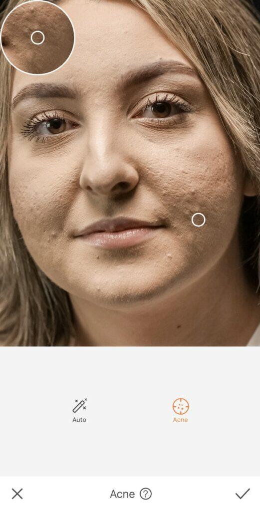 Rosto de uma mulher com marcas de espinha.