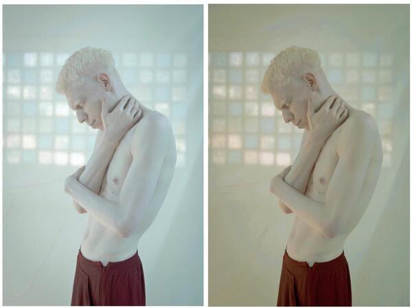 Homem albino com a mão no pescoço