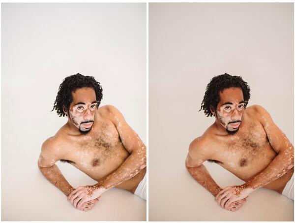 Homem negro com vitiligo apoiado no chão